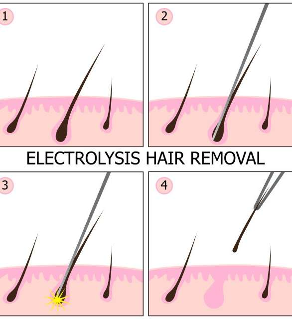 Penile laser hair shaft removal How to